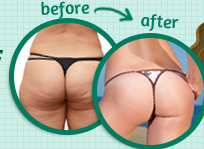 cellulite factor reviews